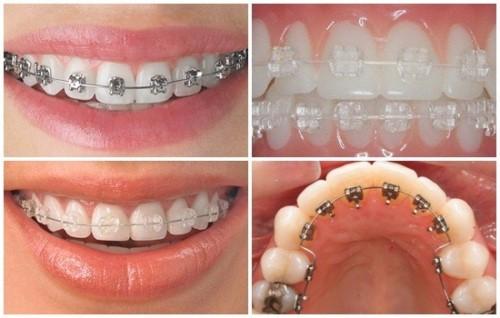 niềng răng có làm răng yếu đi không 2