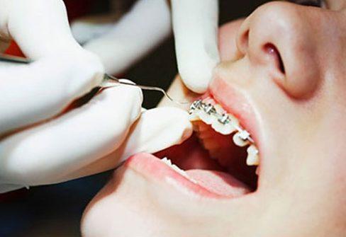 Niềng răng có làm răng yếu đi không 1