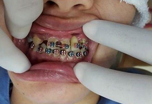 Niềng răng có làm răng yếu đi không 3