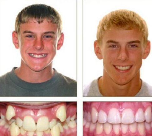 niềng răng có bị thay đổi khuôn mặt không 1