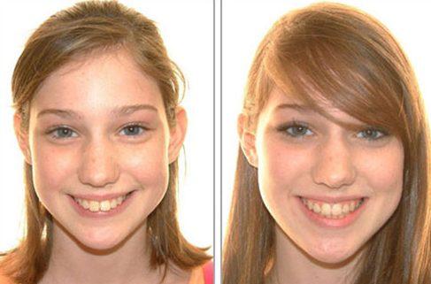 niềng răng có bị thay đổi khuôn mặt không 2
