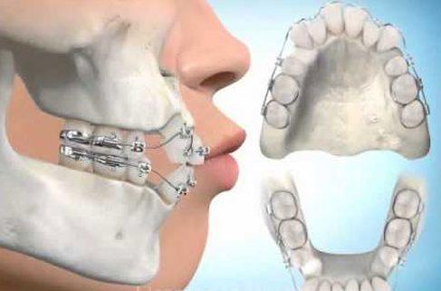 niềng răng có bị thay đổi khuôn mặt không 3