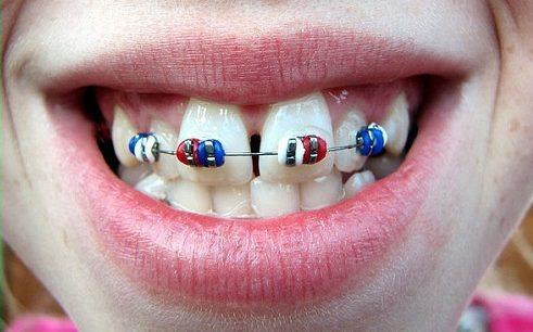 niềng răng cửa mọc chìa có nên hay không -2