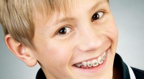 niềng răng cửa mọc chìa có nên hay không -4