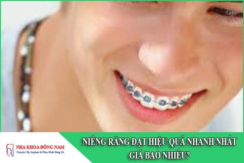 niềng răng đạt hiệu quả nhanh nhất giá bao nhiêu