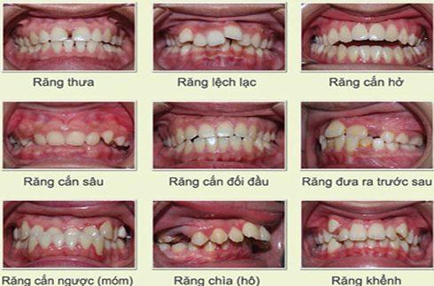 niềng răng đạt hiệu quả nhanh nhất giá bao nhiêu 1