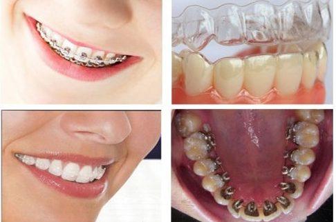 niềng răng đạt hiệu quả nhanh nhất giá bao nhiêu 2
