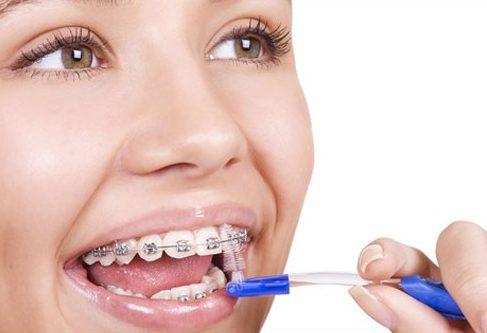 niềng răng phải kiêng những gì 3