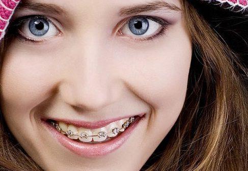 niềng răng phải kiêng những gì 4