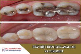 phân biệt trám răng amalgam và composite