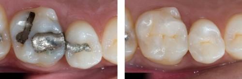 phân biệt trám răng amalgam và composite 1