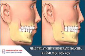 phẫu thuật chỉnh hình răng hô, chìa, khểnh, lộn xộn