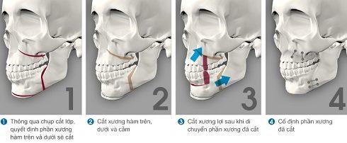 phẫu thuật chỉnh hình răng hô chìa khểnh lộn xộn -2