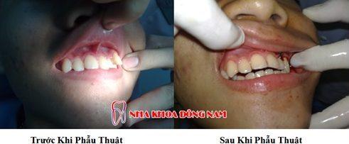 phẫu thuật chỉnh hình răng hô chìa khểnh lộn xộn -4