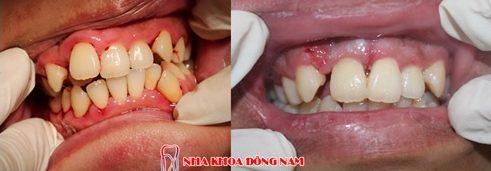 phẫu thuật chỉnh hình răng hô chìa khểnh lộn xộn -5