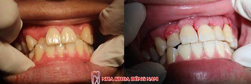 phẫu thuật chỉnh hình răng hô chìa khểnh lộn xộn -6