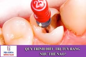Quy trình điều trị tủy răng như thế nào