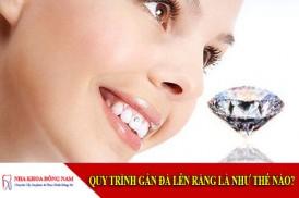 quy trình gắn đá lên răng như thế nào