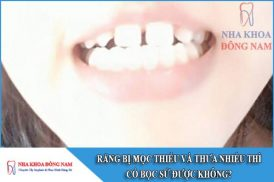 răng bị mọc thiếu và thưa nhiều thì có bọc sứ được không