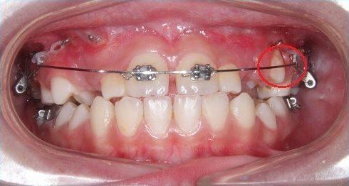 răng bị mọc thiếu và thưa nhiều thì có bọc sứ được không 3