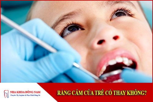 răng cấm của trẻ có thay không