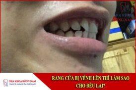 răng bị vểnh lên thì làm sao cho đều lại