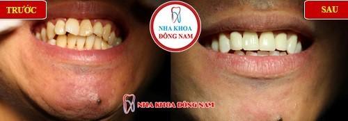 bọc sứ cho răng cửa bị vểnh
