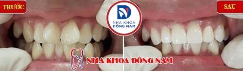 bọc sứ 2 răng cửa bị vểnh lên