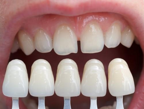 so màu răng sứ