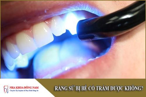 răng sứ bị bể có trám được không