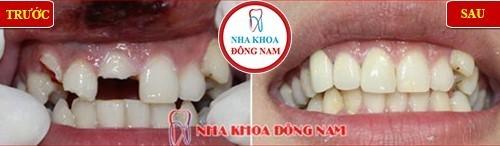 răng sứ bị bể có trám lại được không 1