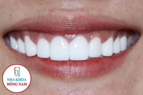 bọc răng sứ thẩm mỹ nguyên hàm