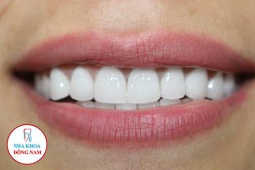 bọc răng sứ hi-zirconia