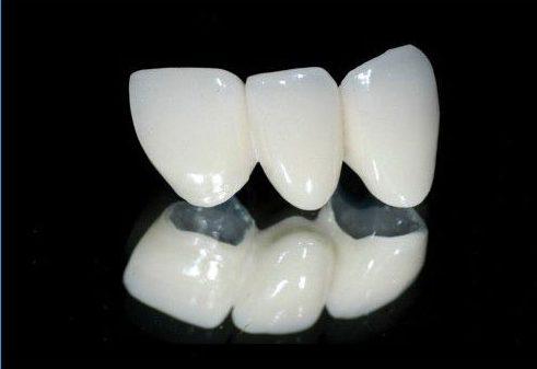 răng sứ cao cấp là loại răng sứ nào 1