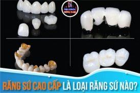 Răng Sứ Cao Cấp Là Loại Răng Sứ Nào?