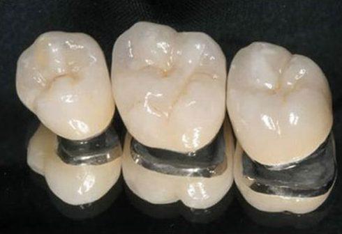 răng sứ cao cấp là loại răng sứ nào 2