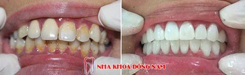 răng sứ cao cấp là loại răng sứ nào 3