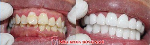 răng sứ cao cấp là loại răng sứ nào 4