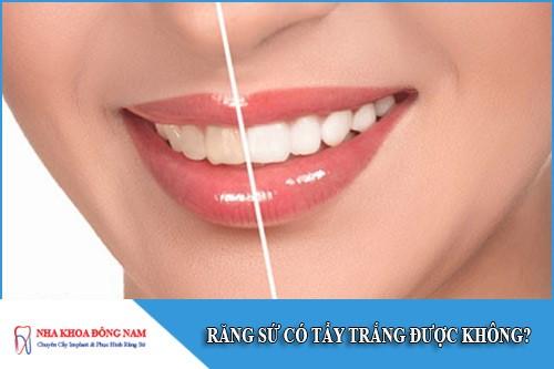 răng sứ có tẩy trắng được không