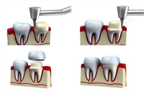 răng sứ có tẩy trắng được không 1