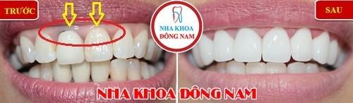 thay sứ kim loại bằng răng toàn sứ