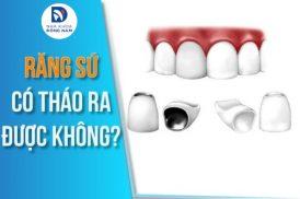 Răng sứ có tháo ra được không?