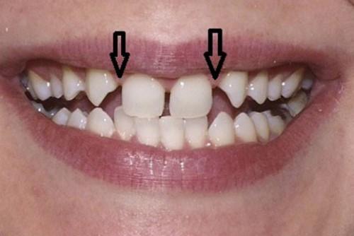 răng vĩnh viễn không mọc
