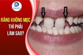 răng vĩnh viễn không mọc thì phải làm sao