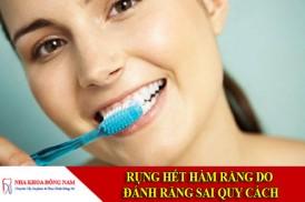 Rụng hết răng do đánh răng sai quy cách
