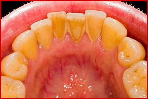 Rụng hết răng do đánh răng sai quy cách 4