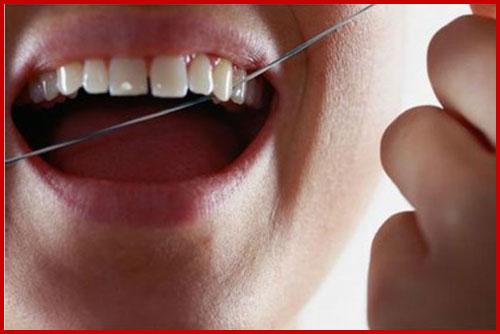 Rụng hết răng do đánh răng sai quy cách 7