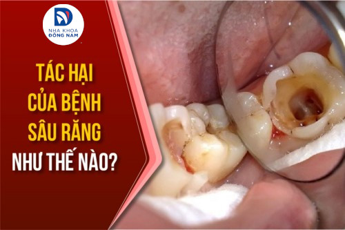 tác hại của bệnh sâu răng nguy hiểm như thế nào