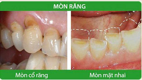 tác hại sau khi đánh răng chà ngang 1
