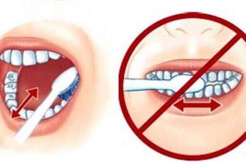 tác hại sau khi đánh răng chà ngang 2